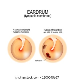 Ruptured eardrum. Anatomy of the humans eardrum. Healthy and perforated tympanic membrane. illustration for medical, science, and educational use