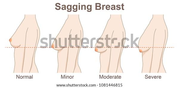 sagging breast degrees