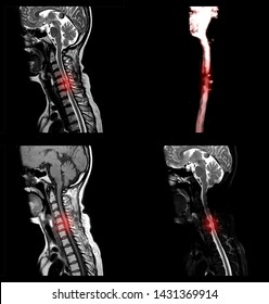 A sagittal view of MRI C-spine or magnetic resonance image of cervical spine showing spondylosis causing cervical spondylotic myelopathy and compression fracture.