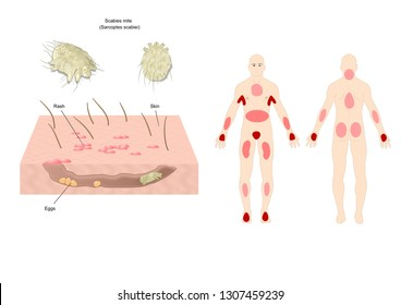 scabies mite (scientific name: sarcoptes scabiei), contagious skin infestation.