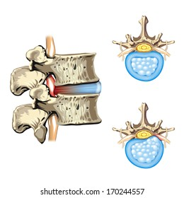 Schematic drawing of hernia of the disc, slipped disc