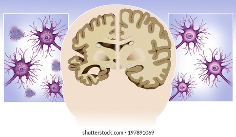 Schematic illustration of the dissection of a healthy brain and one with Alzheimer's disease and healthy and diseased neurons