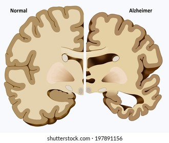 Schematic illustration of the dissection of a healthy brain and one with Alzheimer's disease