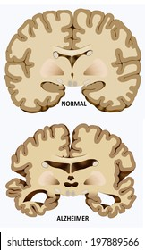 Schematic illustration of the dissection of a normal brain and one with alzheimer's