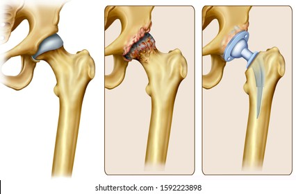 Schematic illustration of hip osteoarthritis, you can see the affected hip and then the surgical treatment of the total hip prosthesis implant.