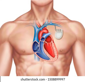 Schematic illustration of a human figure with a pacemaker on the left side of the chest, where the heart can be seen in the sagittal section.