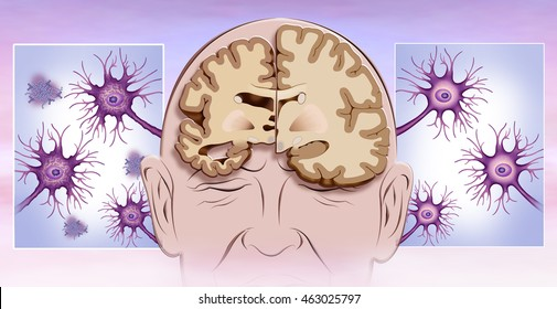schematic illustration of human head with brain representation in two halves, one healthy and one with Alzheimer neurons in the same state.