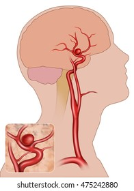 schematic illustration of human head with a saccular aneurysm in internal carotid artery with an enlarged detail of the aneurysm.