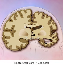 schematic illustration of human head with two brain halves healthy and one with Alzheimer's,