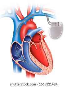 Schematic illustration of the human heart with a bicameral pacemaker.