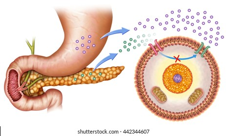 schematic illustration of the pancreas and stomach in insulin levels and increased blood glucose.