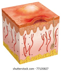 Schematic illustration of a segment of skin affected by pustule