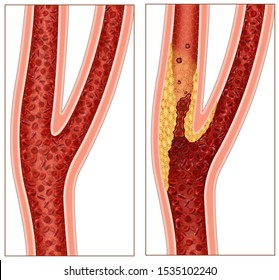 Scheme of a part of the carotid artery, this carries blood to the brain and face, the blood flow in this artery is blocked by fatty material called plaque, this reduces the blood supply to the brain.