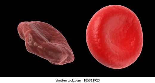 Blood Cells Healthy Unhealthy Images, Stock Photos & Vectors