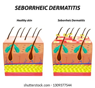 Seborrhea skin and hair. Dandruff seborrheic dermatitis. Eczema. Dysfunction of the sebaceous glands. Inflammatory skin disease. Anatomical structure. Infographics. illustration.