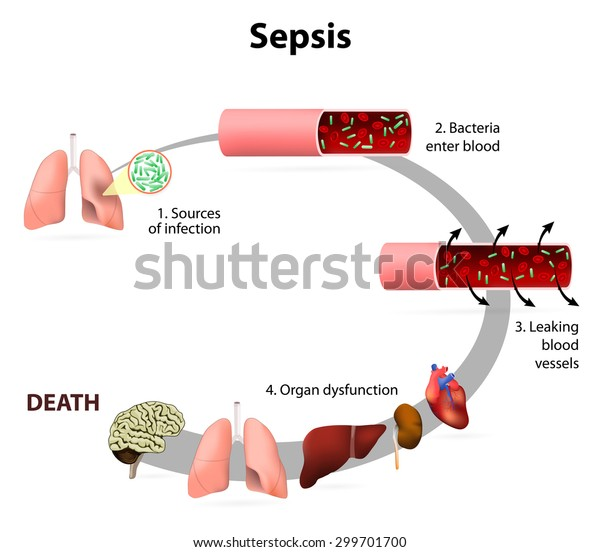 Sepsis or septicaemia is a life-threatening illness. Presence of numerous bacteria in the blood, causes the body to respond in organ dysfunction