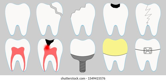 Set of cute cartoon tooth icons. Different tooth conditions. Healthy and bad teeth. Dentist and stomatology icon collection - orthodontics, caries, implant, crown, pulpits, fracture.