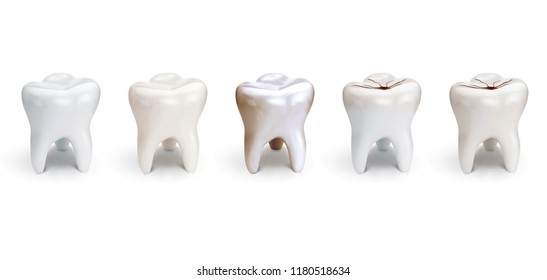 Set of dental care, element for tooth concept. Realistic 3d illustration