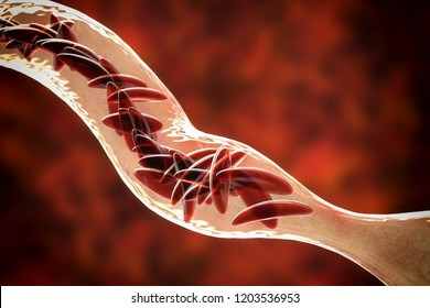 Sickle cell anemia, 3D illustration. Clumps of sickle cell block the blood vessel