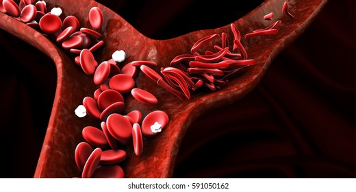 Sickle cell anemia, showing blood vessel with normal and deformated crescent. 3D illustration