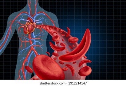 Sickle cell cardiovascular heart blood circulation and anemia as a disease with normal and abnormal hemoglobin in an artery anatomy as a medical illustration concept with 3D illustration elements.