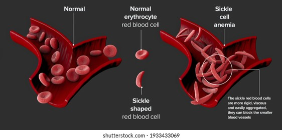 Sickle cell disease is a group of blood disorders. Sickle cell anaemia. It results in an abnormality in the oxygen-carrying protein haemoglobin found in red blood cells. 3d render