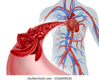Sickle cell heart circulation blockage and anemia as a disease with abnormal hemoglobin in a human artery anatomy with heart cardiovascular medical illustration concept with 3D illustration elements.