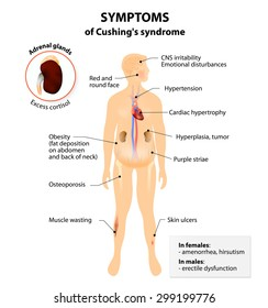 Signs and symptoms of Cushing's syndrome. Labeled. Human silhouette with internal organs