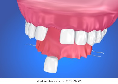 Single Missing Tooth - Removable partial denture .  3D illustration