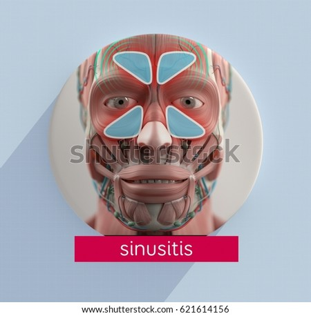Sinus Infographic Sinusitis 3 D Illustration Stock Illustration