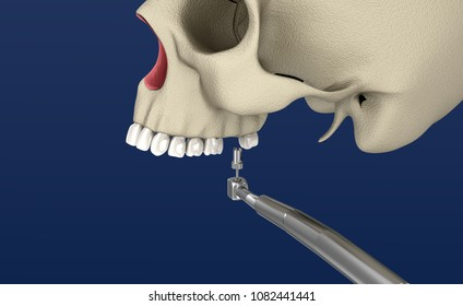 Sinus Lift Surgery - Sinus Augmentation. 3D illustration