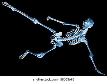 skeleton football xray