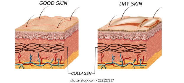 Skin anatomy diagram - comparation good skin and dry.  Illustration of skin cross section showing good skin and dry skin.