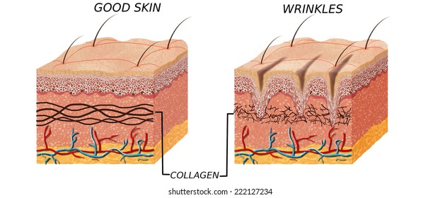 Skin anatomy diagram - younger and older skin.Comparation good skin and skin with wrinkles.  Illustration of skin cross section showing young skin and older skin.
