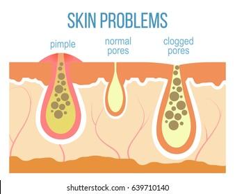 Skin problems - acne, pimples and clogged pores. Skin pores close up.