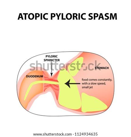 Spasms Pylorus Pylorospasm Atonic Pyloric Sphincter Stock ...