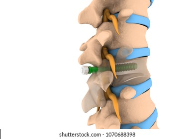 spinal column with implant, screw placement, 3d illustration