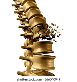 Spinal Fracture and traumatic vertebral injury medical concept as a human anatomy spinal column with a broken burst vertebra due to compression and osteoporosis back disease on a white background.