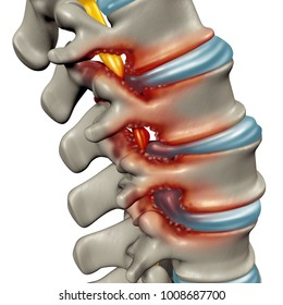 Spinal Stenosis as a degenerative illness in the human vertebrae causing compressed spine nerves medical concept as a 3D illustration.