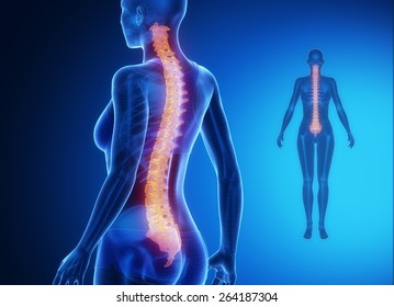 SPINE blue x--ray bone scan