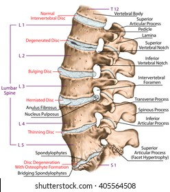 Spine disc problems, degenerative lumbar disc disease, degenerative disc disorder, degenerated disk, bulging disk, herniated disk, thinning disk, disk degeneration with osteophyte formation