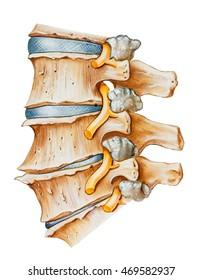 Spine - Lumbar Osteoarthritic and Spondylitic Arthritis. Degeneration of the intervertebral disc between L3 & L4 , spondylitic arthritis between L4 & L5 vertebrae, and an osteoarthritic facet joint.