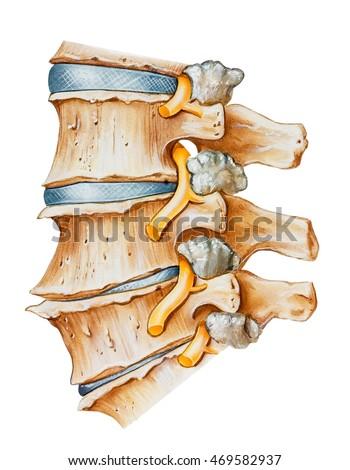 Spine Lumbar Osteoarthritic Spondylitic Arthritis Degeneration Stock ...