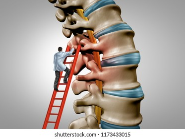 Spine therapy and spinal stenosis medical surgery concept as a degenerative illness surgery in the human vertebrae as a doctor treating and diagnosing the anatomy with 3D illustration elements.