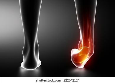 Sprained ankle black x-ray