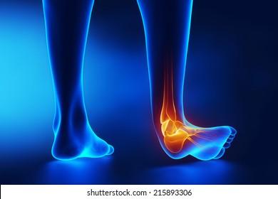 Röntgen-Röntgen-Spritzenblau
