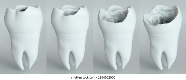 The stages of caries on the molar -- 3D Rendering