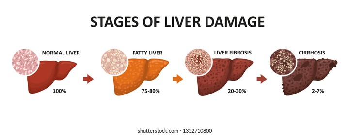Stages of liver damage. Healthy, fatty, liver fibrosis and cirrhosis.