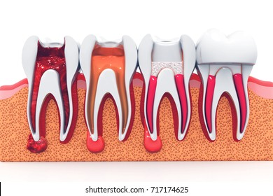 stages of root canal treatment.3d render