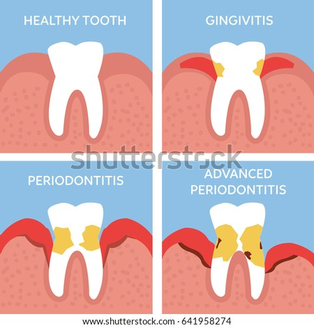 Stages Tooth Periodontitis Dental Anatomy Concept Stock Illustration